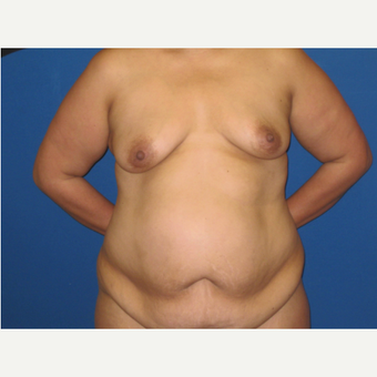 35-44 year old woman treated with Mommy Makeover: 24 hour recovery breast augmentation and TT before 3005444