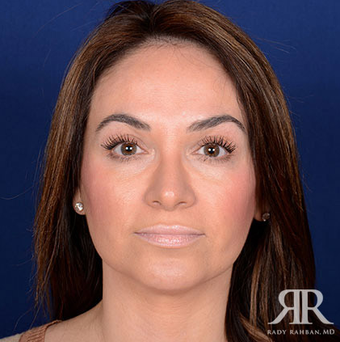 Rhinoplasty after 1315585