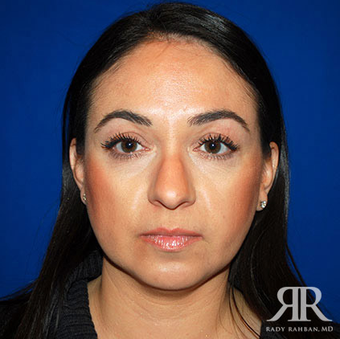 Rhinoplasty before 1315585