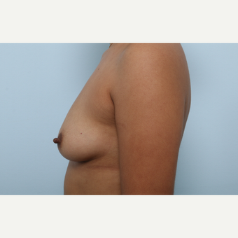 Breast Augmentation before 3345252
