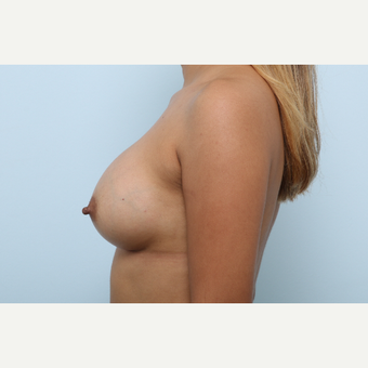 Breast Augmentation after 3345252