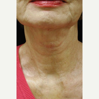 55-64 year old woman treated with Laser Treatment after 1696204