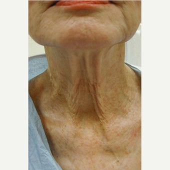 55-64 year old woman treated with Laser Treatment before 1696204