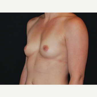 25-34 year old woman treated with Breast Implants before 3651200