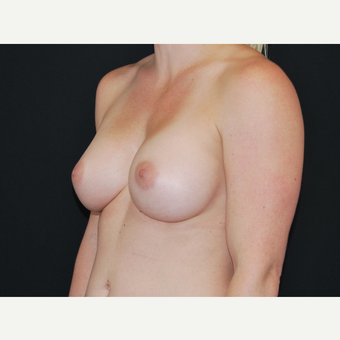 25-34 year old woman treated with Breast Implants after 3651200