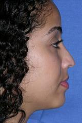 A 29 year old female underwent a closed revision rhinoplasty with a dorsal reduction, septoplasty, dome binding sutures to narro 1240430