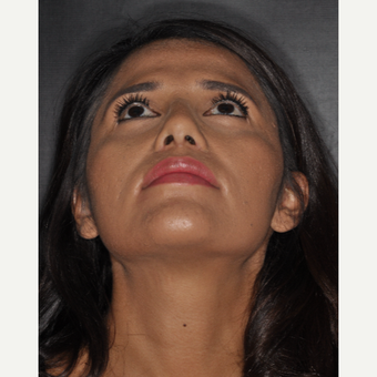 25-34 year old woman treated with Nose Surgery 10 days post-op after 3452329