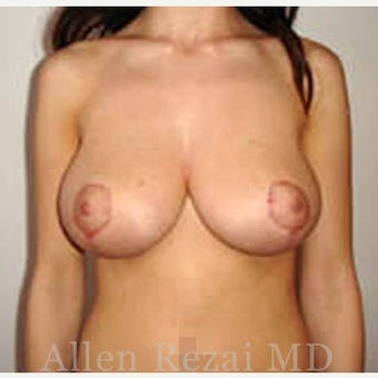 25-34 year old woman treated with Breast Reduction 2281217