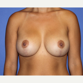 25-34 year old woman treated with Breast Lift with Implants after 3652020