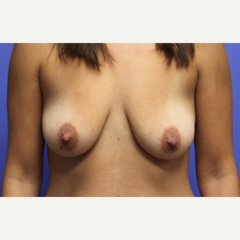 25-34 year old woman treated with Breast Lift with Implants before 3652020