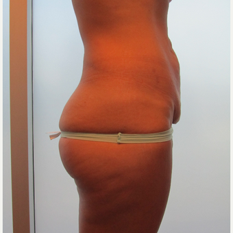 Abdominoplasty/Tummy Tuck before 3136806