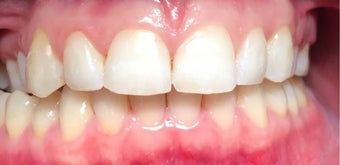 25-34 year old woman treated with Braces after 3031467