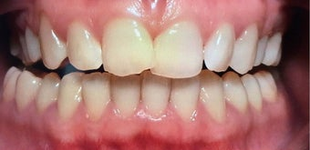 25-34 year old woman treated with Braces before 3031467