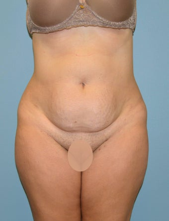 Tummy Tuck before 1433940