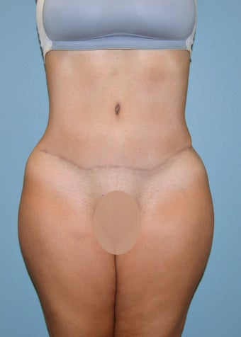 Tummy Tuck after 1433940