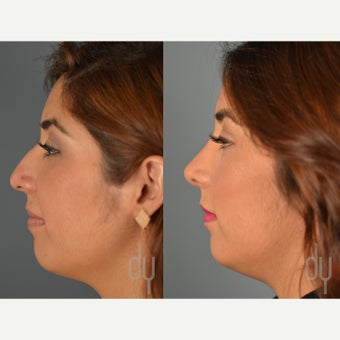 Rhinoplasty before 2112597
