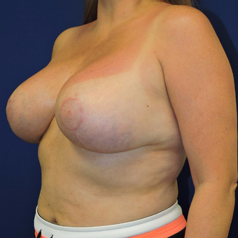 25-34 year old woman treated with Breast Lift with Implants after 3747410
