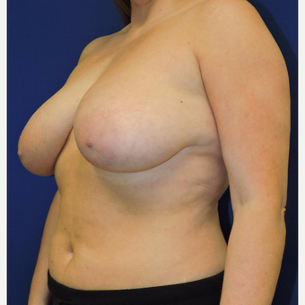 25-34 year old woman treated with Breast Lift with Implants before 3747410