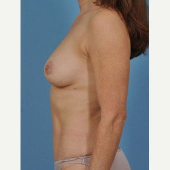 45-54 year old woman treated with Breast Fat Transfer after 2279604