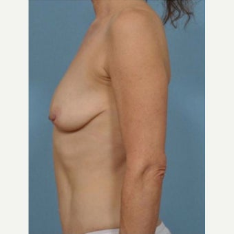 45-54 year old woman treated with Breast Fat Transfer before 2279604