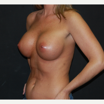 25-34 year old woman treated with Breast Implants after 2994481