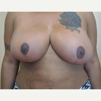 25-34 year old woman treated with Breast Reduction after 2999140