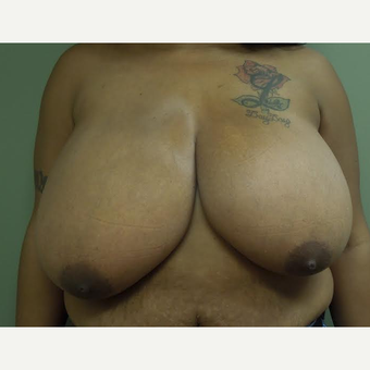 25-34 year old woman treated with Breast Reduction before 2999140
