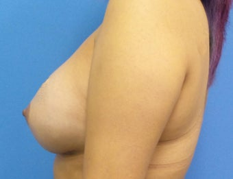 35-44 year old woman treated with Breast Augmentation 3849695