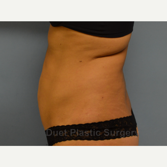 45-54 year old woman treated with Liposuction before 3367932