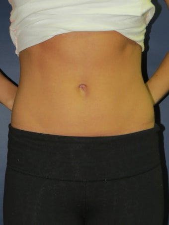 Umbilicoplasty after 1487235