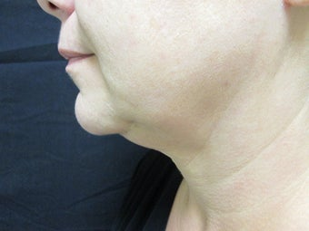 47 Year Old Female Treated with Exilis for Neck Tightening before 1222242