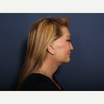 55-64 year old woman treated with Facelift (view 2 of 2) after 3103562