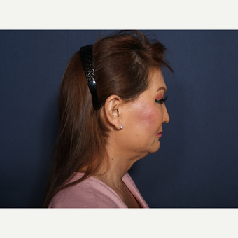55-64 year old woman treated with Facelift (view 2 of 2) before 3103562