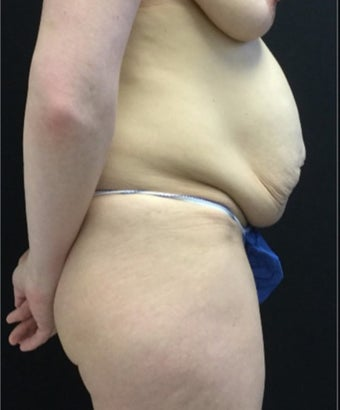 35-44 year old woman treated with Tummy Tuck before 3219230