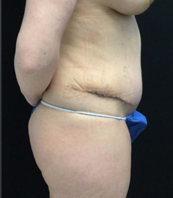 35-44 year old woman treated with Tummy Tuck after 3219230