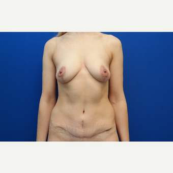 35-44 year old woman treated with Mommy Makeover after 3103261
