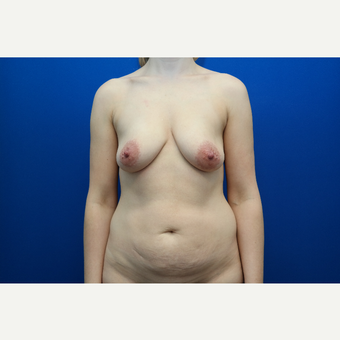 35-44 year old woman treated with Mommy Makeover before 3103261
