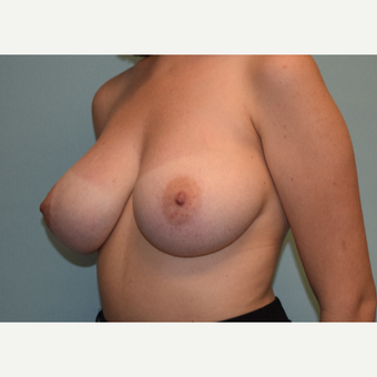18-24 year old woman treated with Breast Reduction before 3543804