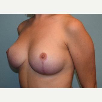 18-24 year old woman treated with Breast Reduction after 3543804