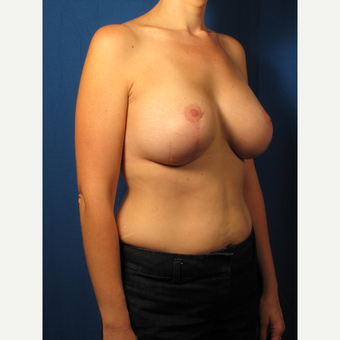 25-34 year old woman treated with Breast Lift after 3267049