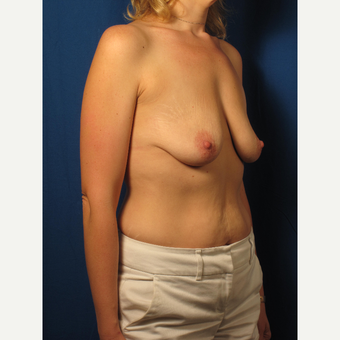 25-34 year old woman treated with Breast Lift before 3267049