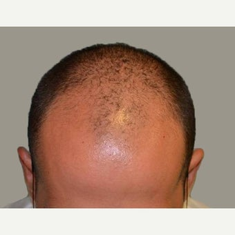 25-34 year old man treated with FUE Hair Transplant before 1556142