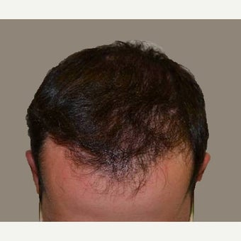 25-34 year old man treated with FUE Hair Transplant after 1556142