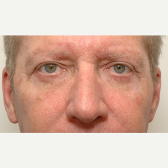 Eyelid Surgery after 3108916