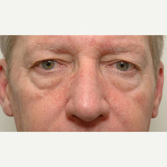Eyelid Surgery before 3108916