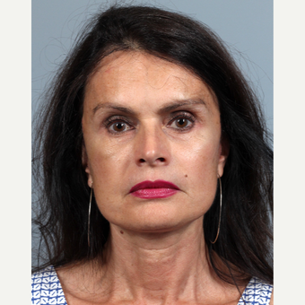 55-64 year old woman treated with Facelift after 3424967