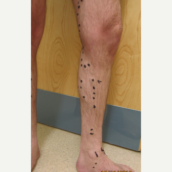 25-34 year old man treated with Sclerotherapy before 2984759