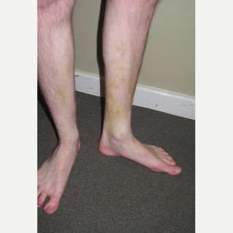 25-34 year old man treated with Sclerotherapy after 2984759
