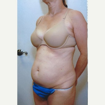 75 and up year old woman treated with Tummy Tuck before 1615918