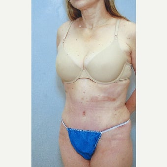 75 and up year old woman treated with Tummy Tuck after 1615918